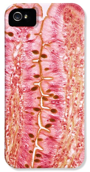 Small Intestine IPhone 5 Case by Steve Gschmeissner