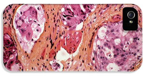Stomach Cancer IPhone 5 Case