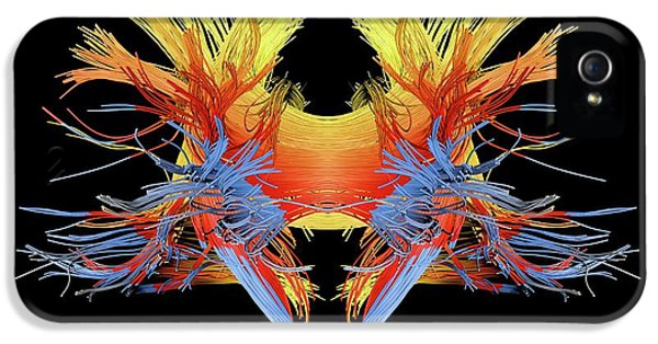 White Matter Fibres Of The Human Brain IPhone 5 / 5s Case by Alfred Pasieka