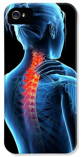 Human Neck Pain IPhone 5 Case