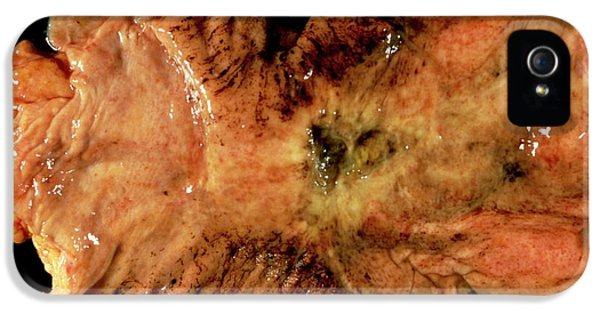 Stomach Cancer IPhone 5 Case by Cnri