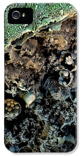 Broccoli IPhone 5 Case by Stefan Diller