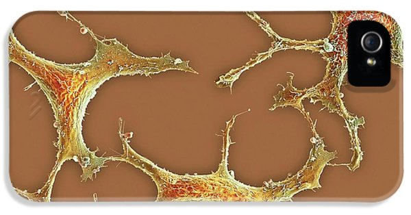 Breast Cancer Cells IPhone 5 Case by Science Photo Library