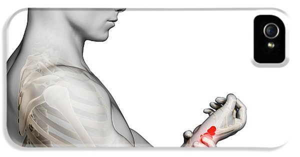 Human Wrist Pain IPhone 5 / 5s Case by Sebastian Kaulitzki