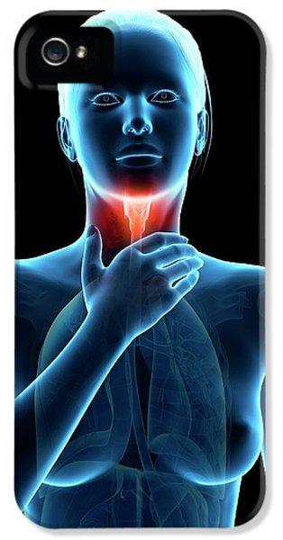 Inflammation Of The Larynx IPhone 5 Case by Sebastian Kaulitzki