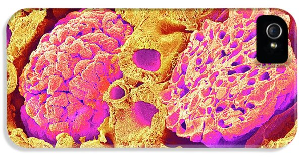 Kidney Glomeruli IPhone 5 Case by Susumu Nishinaga