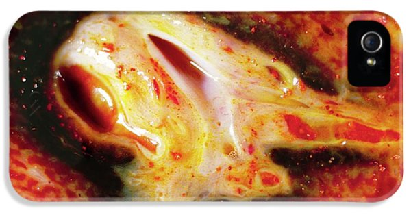 Bile Duct Inflammation IPhone 5 Case
