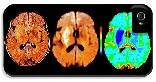 Brain In Ischemic Stroke IPhone 5 Case