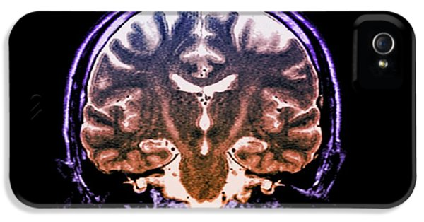 Brain In Motor Neurone Disease IPhone 5 Case by Zephyr