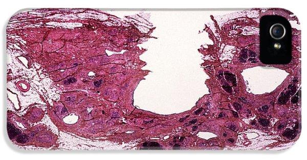 Chronic Pancreatitis IPhone 5 Case by Cnri