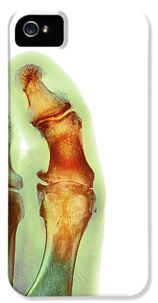 Degenerative Foot Deformation IPhone 5 Case by Dr P. Marazzi