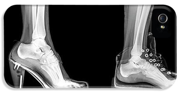Different Shoes X-ray IPhone 5 Case by Photostock-israel