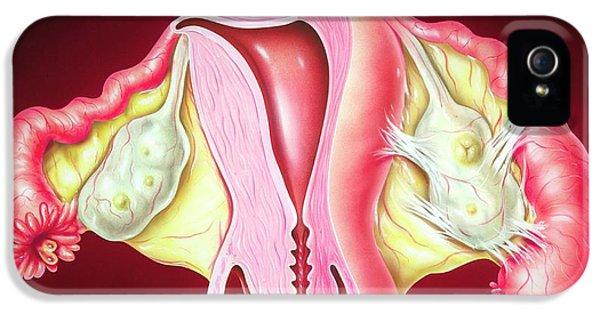 Fallopian Tube Inflammation IPhone 5 Case by John Bavosi