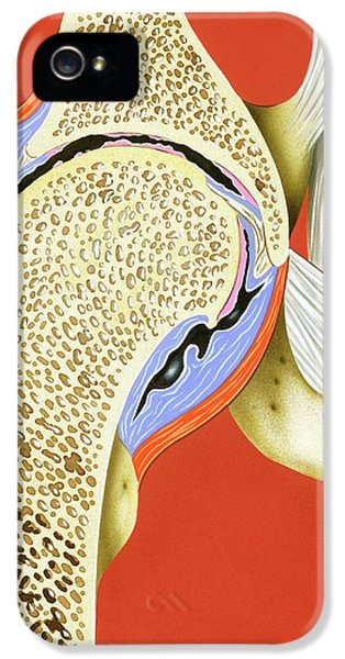 Hip Joint Inflammation IPhone 5 Case by John Bavosi