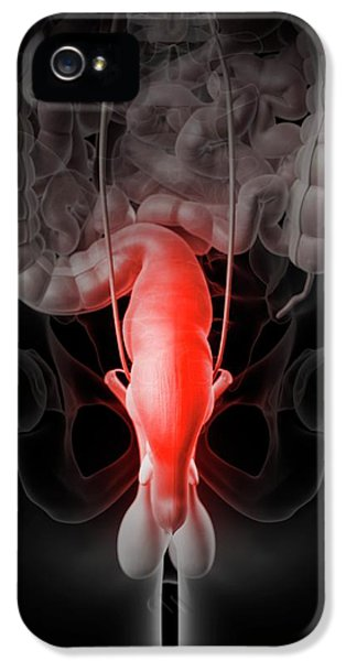 Inflamed Rectum IPhone 5 / 5s Case by Sciepro