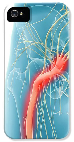 Inflamed Sciatic Nerve IPhone 5 / 5s Case by Sciepro