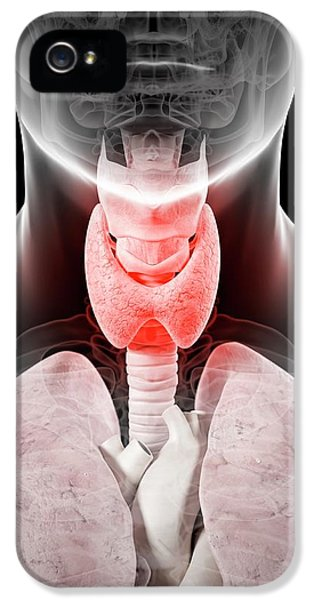 Inflamed Thyroid IPhone 5 / 5s Case by Sciepro