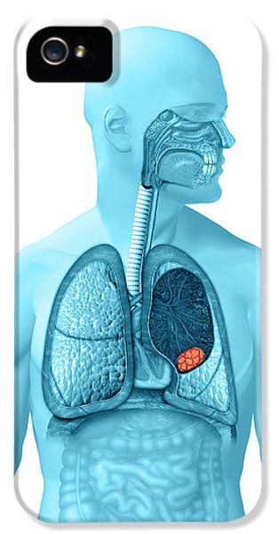 Lung Cancer IPhone 5 Case