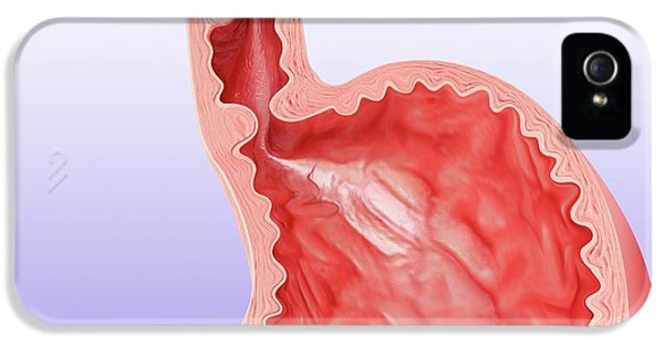 Oesophageal Cancer IPhone 5 Case