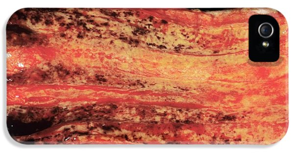 Oesophageal Varices IPhone 5 Case by Cnri