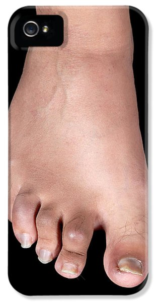 Psoriatic Arthritis IPhone 5 Case by Science Photo Library
