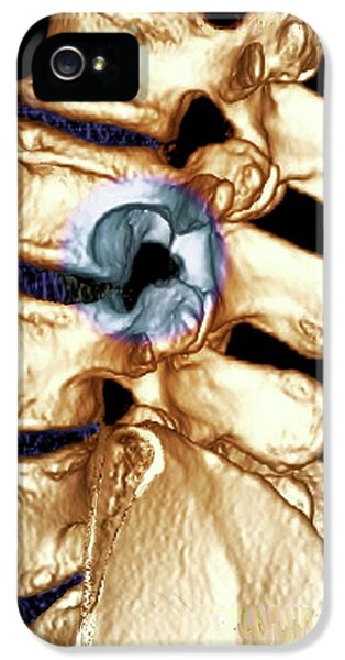 Spinal Tumour IPhone 5 / 5s Case by Zephyr