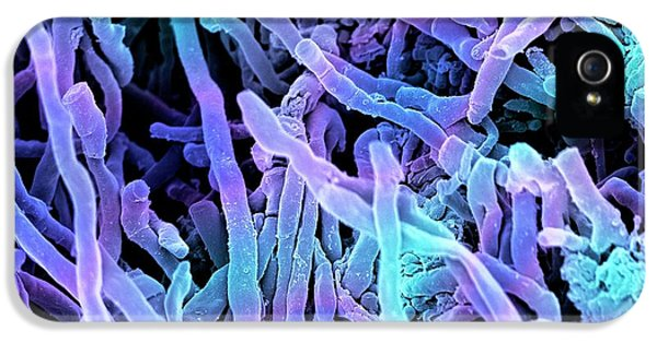 Streptomyces Coelicoflavus Bacteria IPhone 5 Case by Science Photo Library
