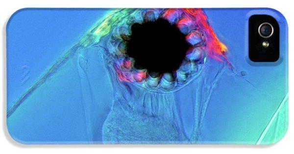 Water Flea Eye IPhone 5 Case