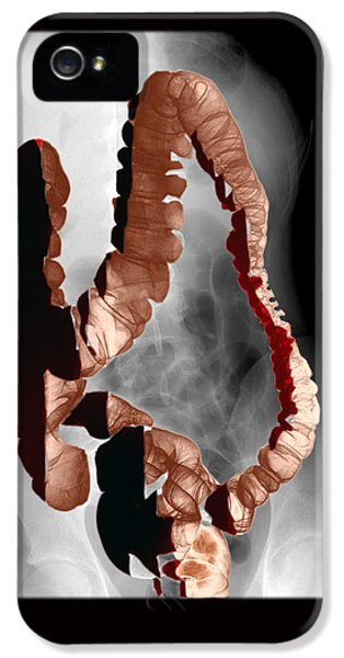 Normal Double Contrast Barium Enema IPhone 5 Case by Medical Body Scans