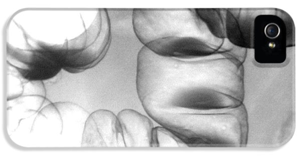 Normal Double Contrast Barium Enema IPhone 5 Case