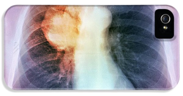 Lung Cancer, X-ray IPhone 5 Case by Du Cane Medical Imaging Ltd