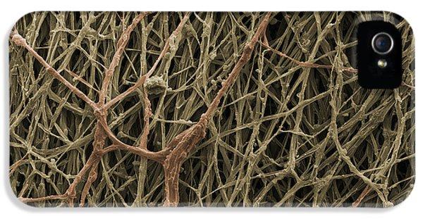 Sem Of Mycelium On Mushrooms IPhone 5 Case by Ted Kinsman