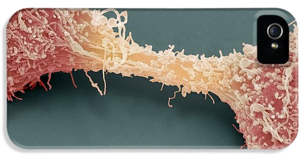 Dividing Brain Cancer Cells, Sem IPhone 5 Case by Steve Gschmeissner