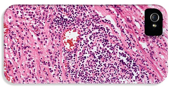 Bacterial iPhone 5 Cases - Cardiovascular Syphilis, Light Micrograph iPhone 5 Case by Steve Gschmeissner