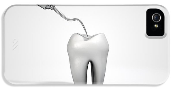 Dentists Probe Hook And Tooth IPhone 5 Case
