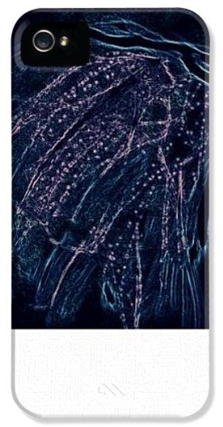 Reanimated  IPhone 5 Case