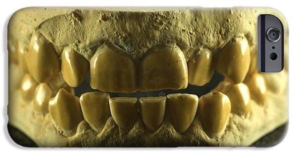 Dental Mold iPhone 6 Cases | Fine Art America