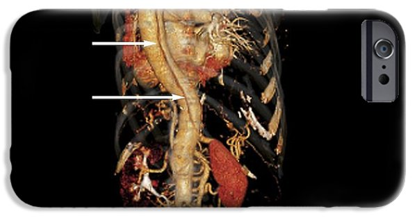 3-d iPhone Cases - Aortic Aneurysm Ct Scan iPhone Case by Zephyr