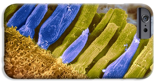 Scanning Electron Micrograph Photographs iPhone Cases - Rods And Cones In Retina iPhone Case by Omikron