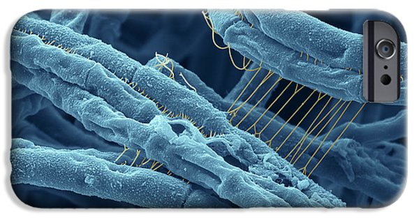 Sem iPhone Cases - Anthrax bacteria SEM iPhone Case by Eye Of Science and Photo Researchers