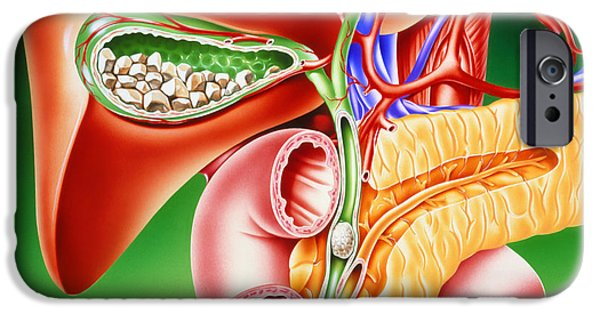 Disorder iPhone Cases - Artwork Of Gallstones In Gall Bladder & Bile Duct iPhone Case by John Bavosi