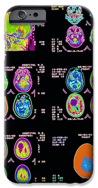 Diagnostics iPhone Cases - Coloured Ct Scans Of The Brain iPhone Case by Mehau Kulyk