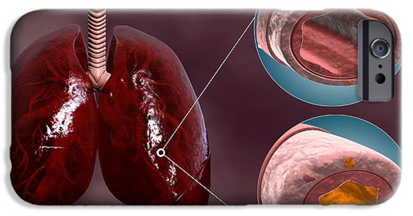 Trachea Cross-section With Lungs IPhone Case by Stocktrek Images