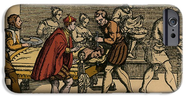 Earliest Depiction Of Craniotomy IPhone Case by Photo Researchers