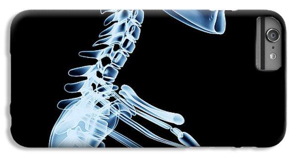 Spines iPhone 6s Plus Case - X-ray Skeleton Röntgen On Black by Posteriori
