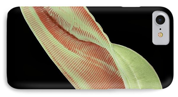 Amphiprora Diatom IPhone Case by Steve Gschmeissner