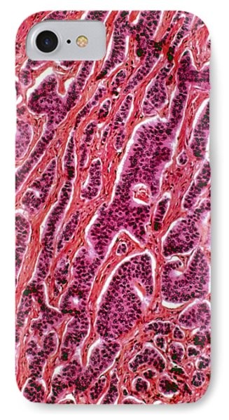 Appendix Cancer IPhone Case by Cnri