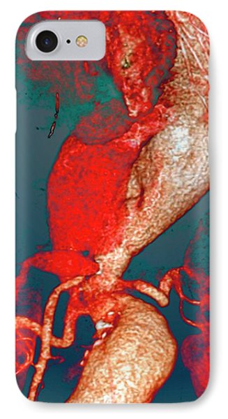 Arterial Aneurysms In Marfan Syndrome IPhone Case by Zephyr