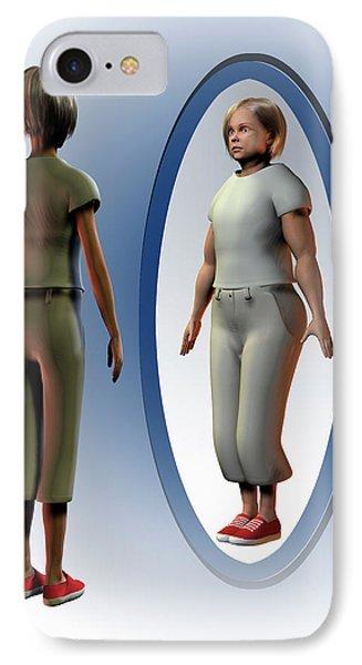 Body Dysmorphia IPhone Case by Carol & Mike Werner