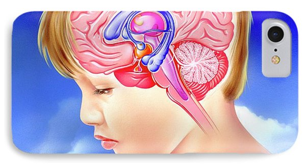 Brain And Childhood Depression IPhone Case by John Bavosi